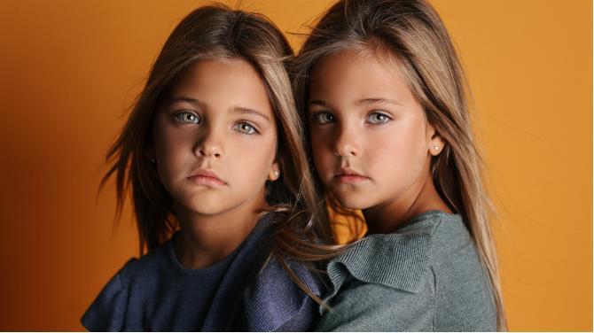 Estas gemelas son consideras las más bonitas del mundo