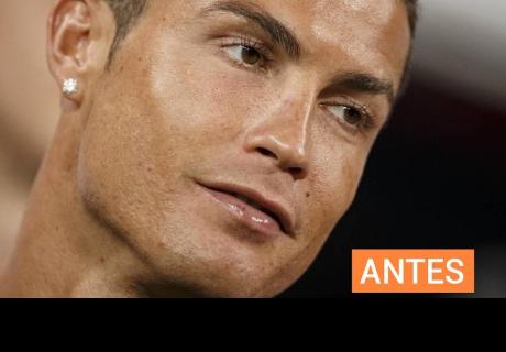 Cristiano Ronaldo quedó mal tras brutal patada en el rostro; sus fans lamentan su nueva apariencia