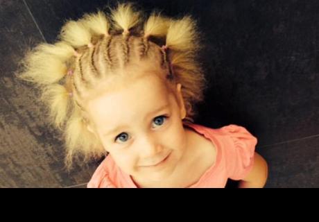 Bebé nace con síndrome de 'cabello impeinable' y su historia es muy tierna