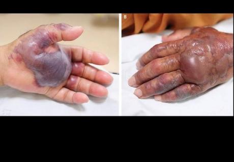 Hombre pierde su mano por contraer infección por comer mariscos crudos