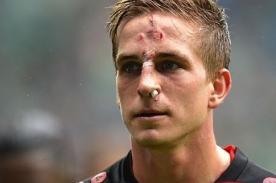 Video: Tremenda patada recibió jugador de Eintracht Frankfurt