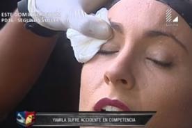 Reto De Campeones: Yamila Piñero sufre corte en el rostro - VIDEO