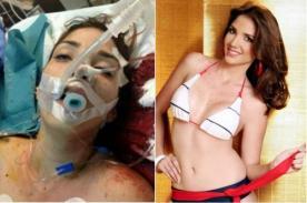 Venezuela: Miss Turismo Carabobo fue herida en manifestación opositora