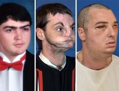 Foto: El trasplante de cara más exitoso de la historia