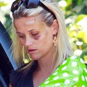 Reese Witherspoon aparece en público con el ojo morado tras accidente