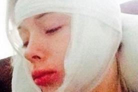 Barbie Humana, Valeria Lukyanova, internada tras que le desfiguraran el rostro