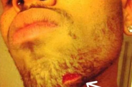 Chris Brown fue herido en pelea de botellazos por amigos de Drake