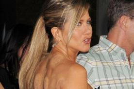 Jennifer Aniston deja ver extrañas manchas en su espalda