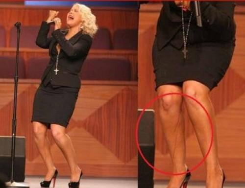 Foto: Extraño líquido recorre las piernas de Christina Aguilera