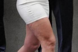 Britney Spears muestra celulitis en las piernas