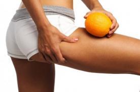 Celulitis: Ciertos alimentos podrían ayudar a prevenirlo - Conócelos