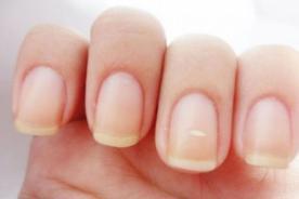 Salud y bienestar: Manchas blancas en las uñas pueden ser hongos