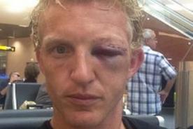 Video: Dirk Kuyt terminó así luego del brutal choque con su compañero