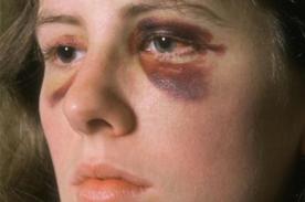 Impactante: Vive en primera persona la violencia doméstica - VIDEO