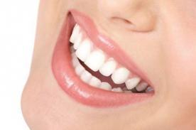 Salud dental: La blancorexia es la obsesión por tener dientes blancos
