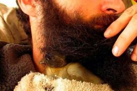 Insólito: Joven estadounidense cría un pato bajo su barba
