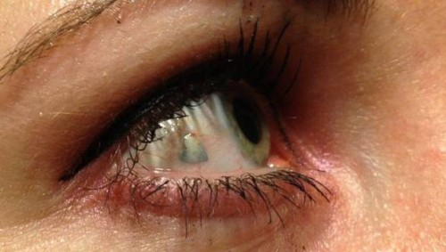 Implante de joyas en los ojos, nueva tendencia en Estados Unidos