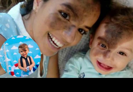 Ella es una mamá todo terreno: Se maquilla el lunar que tiene su hijo para festejar su singularidad