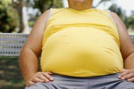 Obesidad: 81% de personas que tienen este mal sufren de migraña