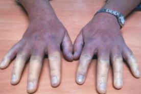 Raynaud: Manos de mujer cambia de color por una extraña enfermedad