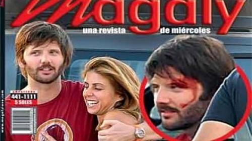 Foto: Galán de Fiorella Cayo termina golpeado en incidente