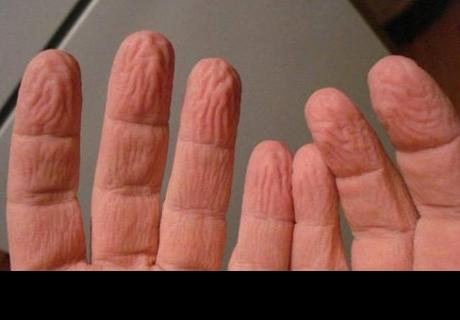 ¿Se te arrugan los dedos de las manos por la humedad? ¡Esta es la explicación!