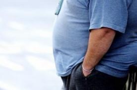 Niegan visa a chef en Nueva Zelanda por su sobrepeso