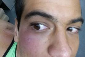 Ernesto Jiménez muestra la terrible herida que le impidió competir [Foto]