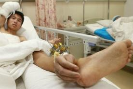 Increíble: Médicos implantan mano tras mantenerla conectada en tobillo - FOTOS