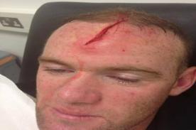 Wayne Rooney sufrió un terrible corte en la cabeza mientras entrenaba