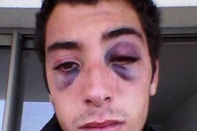 Chileno luce irreconocible tras tremenda golpiza de su ex novia [FOTO]